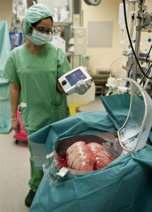 Im Jahr 2011 wurden in Österreich 66 Lungentransplantationen durchgeführt.