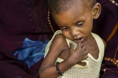 Jeder dritte Todesfall bei Kindern hängt nach UNICEF-Angaben mit chronischer und akuter Unterernährung zusammen.