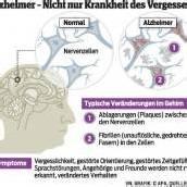 Alzheimer: Weltweit 30 Millionen betroffen