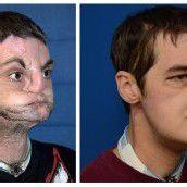 Mann wurde komplettes Gesicht transplantiert