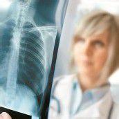 Strengere Rauchverbote entlasten Krankenhäuser