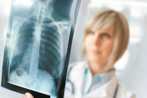 Raucher oder Nichtraucher? Das Röntgenbild zeigt es. Foto: fotolia