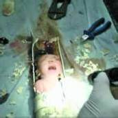 Neugeborenes in China aus Abflussrohr gerettet