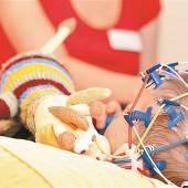 Fortschritt bei Epilepsie-Behandlung