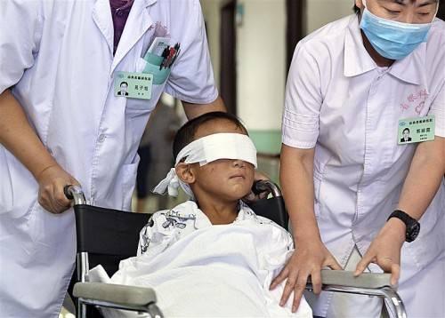 Die Ärzte hoffen, dass Guo Bin in fünf bis zehn Jahren sogenannte bionische Augen erhält, die ihm 20 bis 40 Prozent Sehkraft zurückgeben.  AP