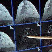 Brustkrebsvorsorge startet im Jänner