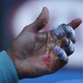 Nadals Hand ist eine einzige Wunde
