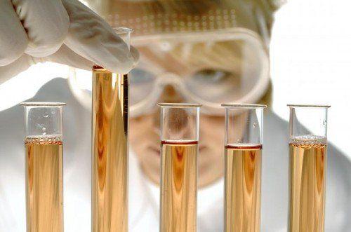 Bei der Diagnose eines möglichen Eisenmangels spielt die Arbeit im Labor eine entscheidende Rolle.