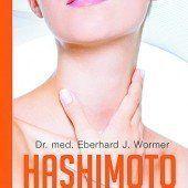 Hashiomoto erkennen und behandeln