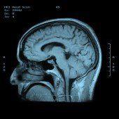 Ein interessanter Blick ins Gehirn