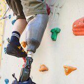 Mitfühlende Beinprothese verschafft neue Hoffnung