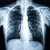 Neue Behandlungsmöglichkeit für Lungenkrebspatienten in Sicht