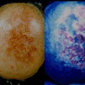 Sonnenlicht und Salbe gegen hellen Hautkrebs