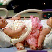 Siamesische Zwillinge erfolgreich getrennt