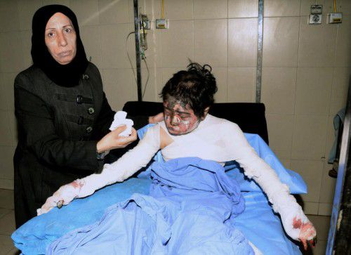 Ein Kind erlitt schwere Verletzungen durch Bombensplitter. Die Luftangriffe in Syrien haben schon zahllose zivile Opfer gefordert.  Foto: afp