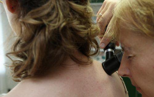 Bei Hautkrebs kann das eigene Immunsystem wirksam sein. Man sollte es jedoch nicht darauf ankommen lassen. Foto: ap