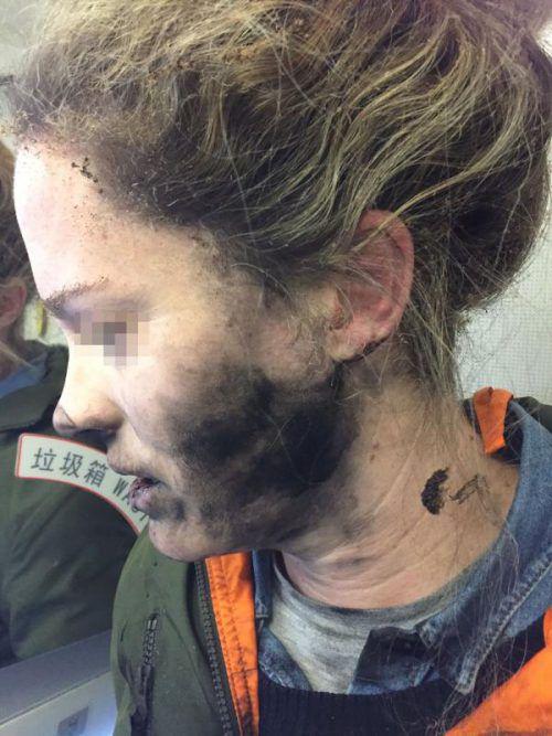 Eine Australierin erlitt bei dem Vorfall leichte Verletzungen. AFP