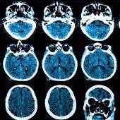 Mit Sensortechnik gegen Parkinson