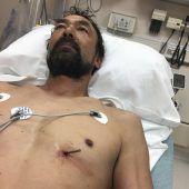Wie ein Wunder: Mit Nagel im Herz überlebt