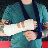 Chartstürmer Ed Sheeran verletzt sich bei Fahrradunfall