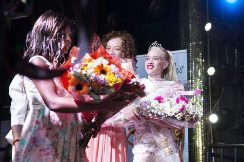 """Sithembiso Mutukura (r.) ist """"Miss Albino Simbabwe"""", die erste Siegerin eines Schönheitswettbewerbs für Menschen mit Albinismus in dem Land im Südosten Afrikas. afp"""