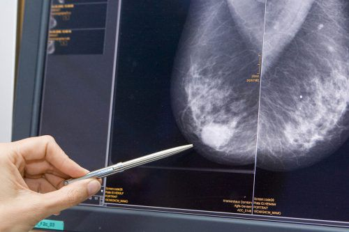 Die Vorsorge ist im Coronajahr um bis zu 70 Prozent eingebrochen. Jetzt werden mehr Krebsdiagnosen im fortgeschrittenen Stadium erwartet. vn