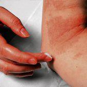Neurodermitis und Schuppenflechte