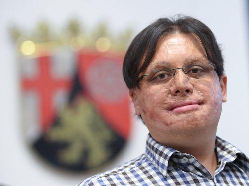 Das Ramstein-Opfer Marc-David Jung hat 30 Operationen hinter sich. DPA