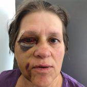 Frau in Egg brutal zusammengeschlagen