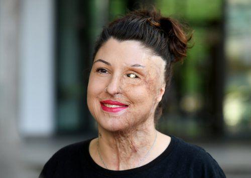 Ein außergewöhnlich hohes Schmerzensgeld für Vanessa Münstermann. DPA