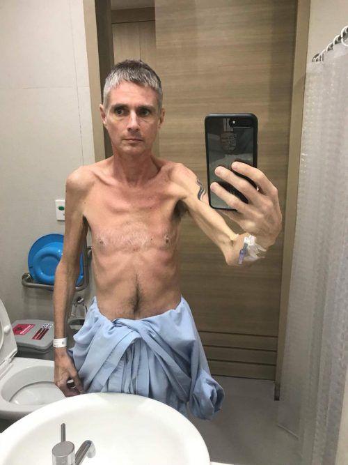 Ein Selfie zeigt Daniel Feuerstein, als er nur noch 42 Kilogramm gewogen hat.