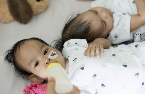 Nima und Dawa wurden in einer sechsstündigen Operation voneinander getrennt. AP