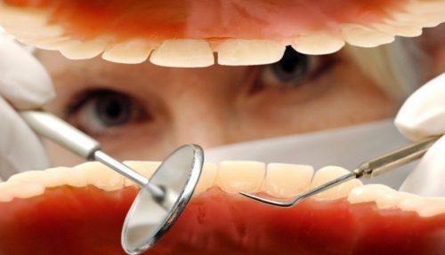 """Nach der Mundhygiene handelte die Patientin selbst nicht """"sauber"""".dpa"""