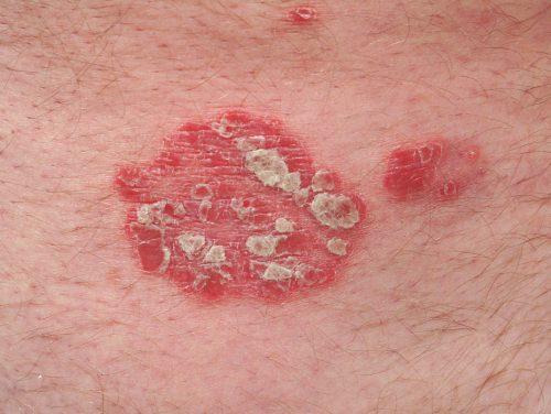 Die Schuppenflechte ist ein Beispiel dafür, dass auch Erkrankungen des Immunsystems in den Griff zu bekommen sind.khbg