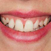 Wie der natürliche Zahn