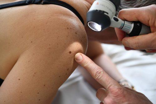 Die Früherkennung und nicht zuletzt Vorsorgeprogramme können bei einer Krebserkrankung sprichwörtlich lebensrettend sein. AFP