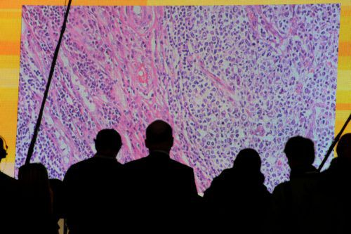 Experten sehen sich Krebszellen an, die von einem Mikroskop auf einen großflächigen Bildschirm gespiegelt wurden. Reuters
