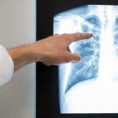 Rinder-TBC übertragbar auf Menschen
