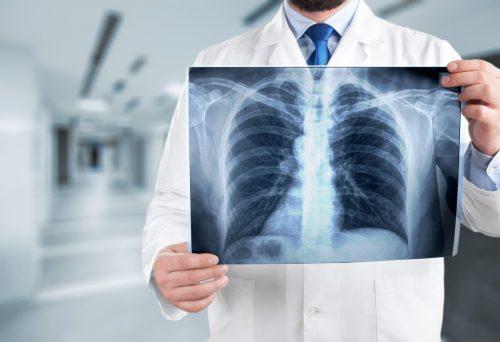 Zum ersten Mal ist es Forschern gelungen, sogenannte T-Helferzellen in Form eines neuen Typs auch in der Lunge nachzuweisen. adobe