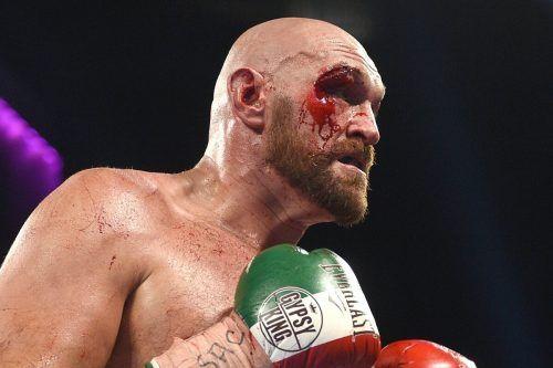 Tyson Fury hat richtig Lust auf den Mega-kampf gegen Anthony Joshua.apa