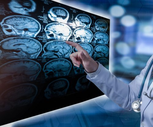 Der Welt-MS-Tag soll das Bewusstsein für die häufigste neurologische Erkrankung im jungen Erwachsenenalter schärfen.
